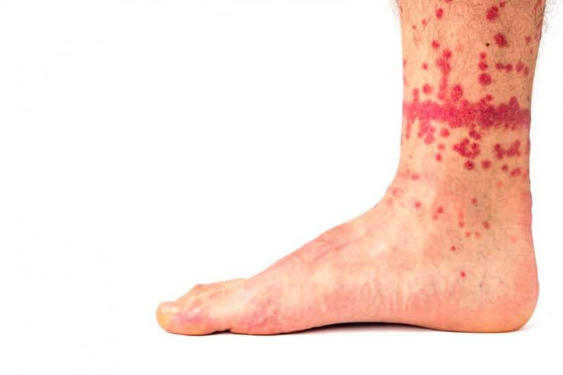 Flea bites on an ankle