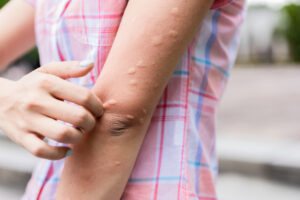 The Best Ways to Get Rid of Mosquitoes Naturally